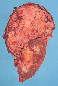 carcinoma-surrene endocrinologiaoggi