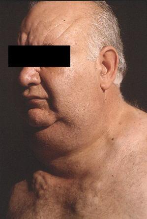 sindrome-mediastinica endocrinologiaoggi