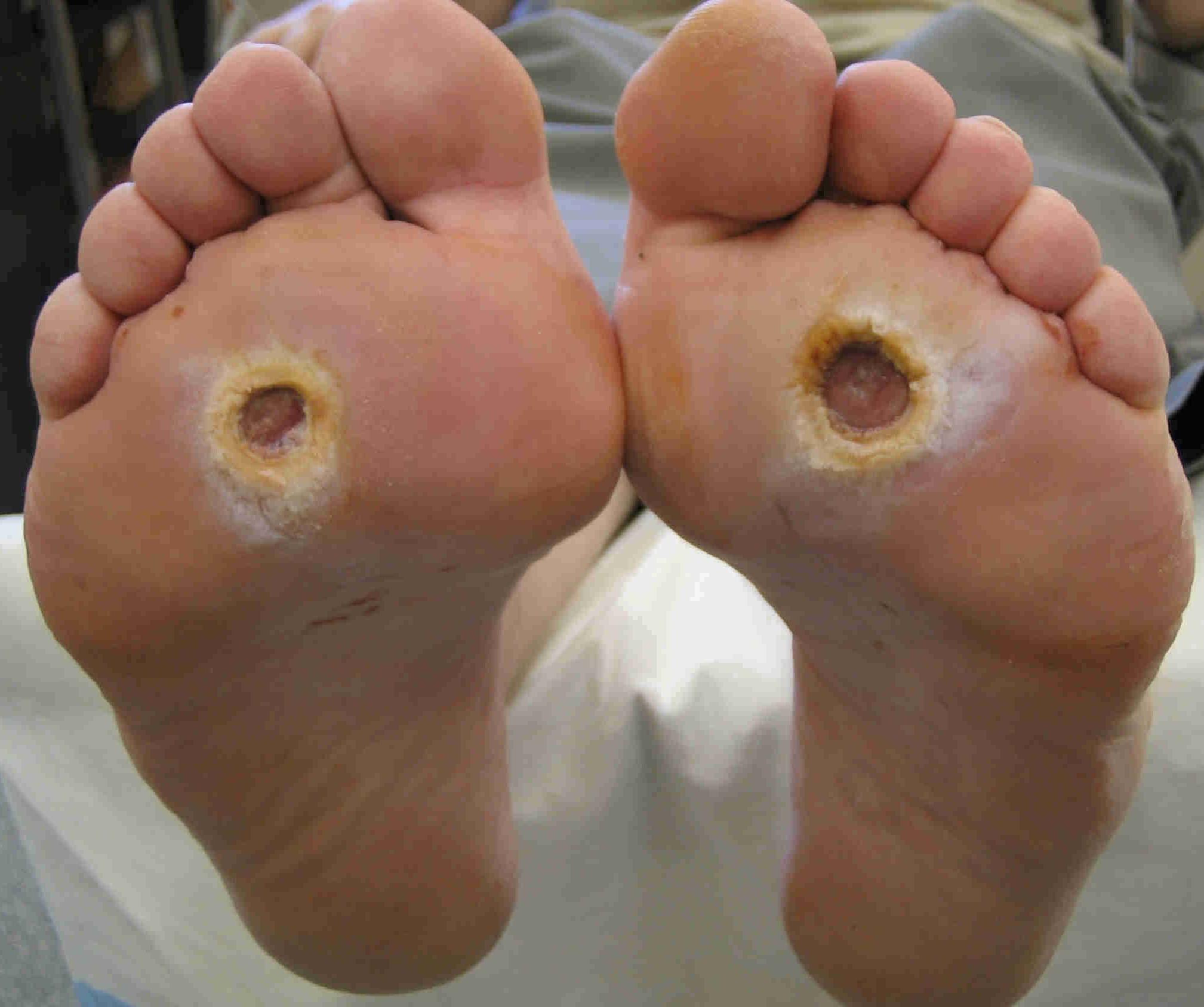 piede-diabetico endocrinologiaoggi