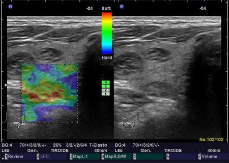 elastografia-tiroide-ES1 endocirnologiaoggi