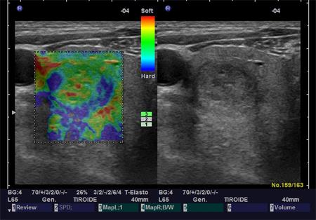 elastografia-tiroide-ES2 endocrinologiaoggi