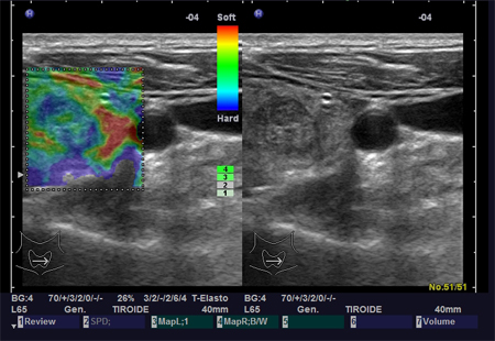elastografia-tiroide-ES3 endocrinologiaoggi