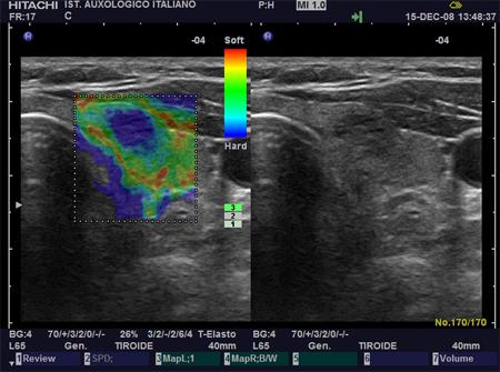 elastografia-tiroide-ES4 endocrinologiaoggi