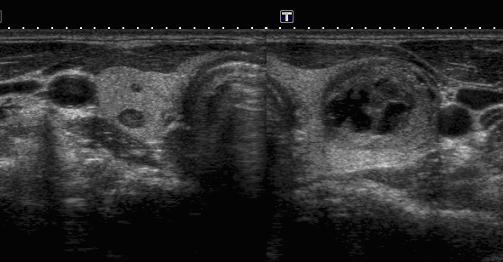 struma-multinodulare endocrinologiaoggi