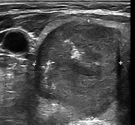 carcinoma-midollare-tiroide endocrinologiaoggi