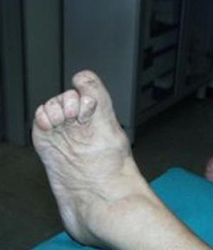 piede-charcot-endocrinologiaoggi