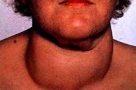 gozzo-tiroide endocrinologiaoggi