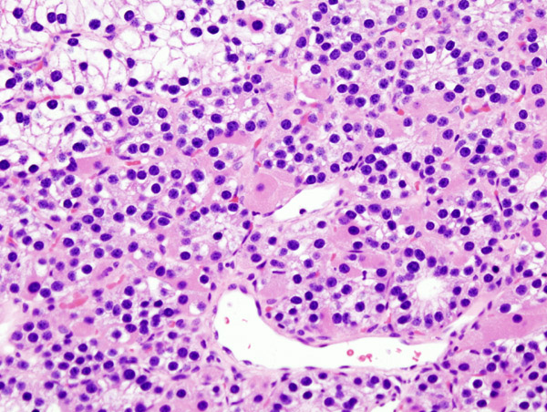 istologia-adenoma-paratiroide endocrinologiaoggi