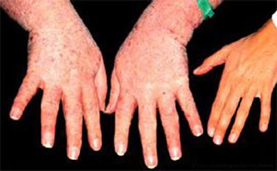 mani-acromeglia endocrinologiaoggi