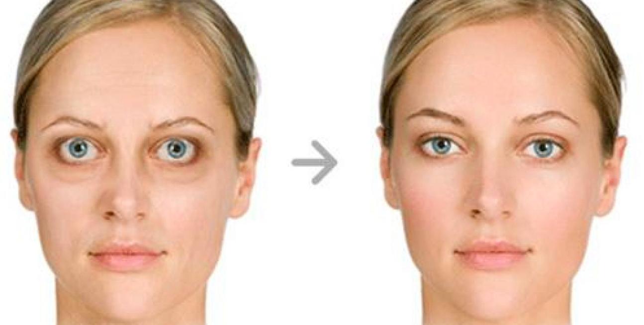 L' oftalmopatia basedowiana è una patologia del morbo di Basedow.
