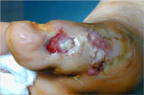 osteomielite-endocrinologiaoggi