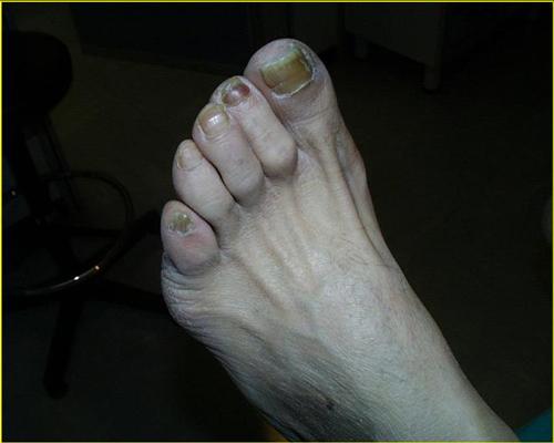 piede-neuropatico endocrinologiaoggi