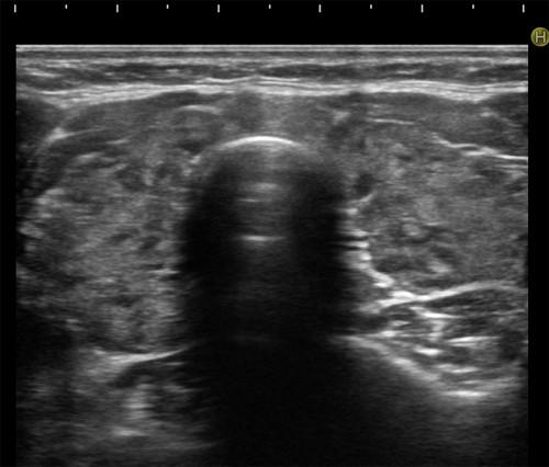 tiroidite cronica Hashimoto