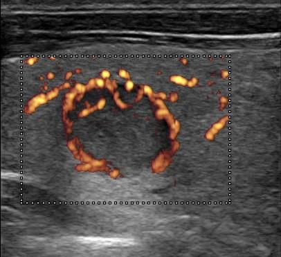 vascolarizzazione perinodulare endocrinologia oggi