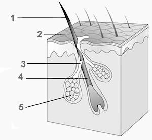 Pelo-capello endocirnologiaoggi irsutismo