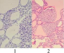 tumore-neuroendocrino endocrinologiaoggi