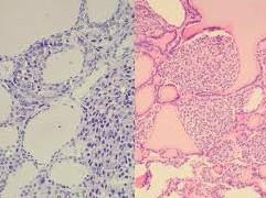neuroendocrino endocrinologiaoggi