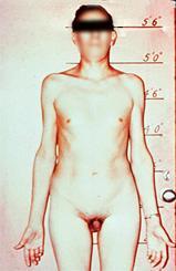 klinefelter-xxy endocrinologiaoggi