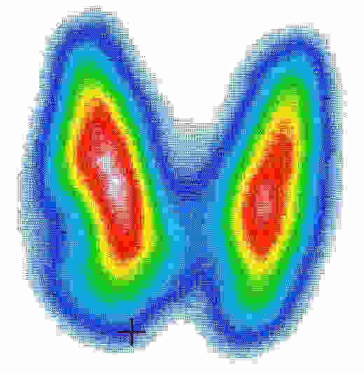 scintigrafia-tiroide endocrinologiaoggi