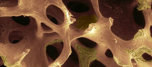 TERAPIA DELLA OSTEOPOROSI