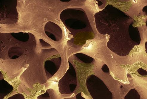 osteoporosi endocrinologiaoggi